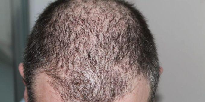 Kurze Haare Männer Haarausfall Frisur Männer Haarausfall