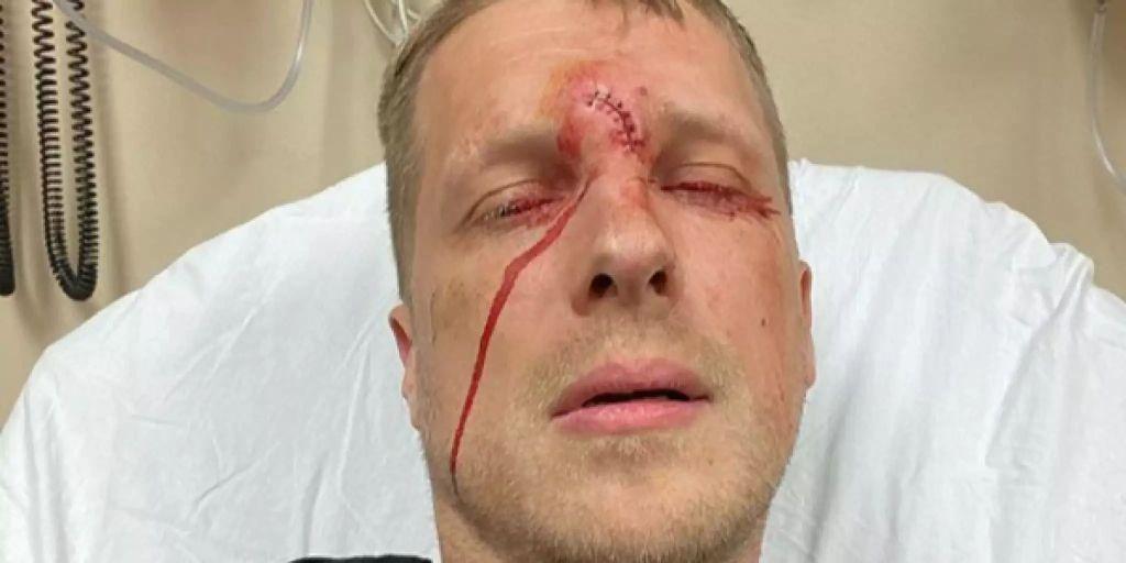 Oliver Pocher Verletzung