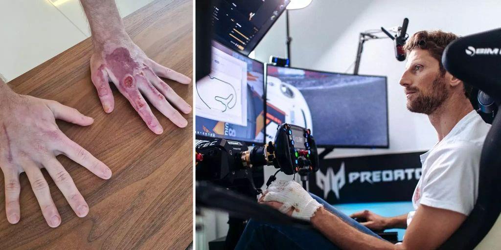 Formel 1: Romain Grosjean zeigt seine Verbrennungen nach Crash