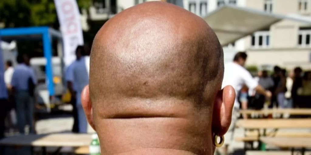 Männer glatze bilder mit Berührende Bilder